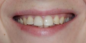 Восстановление зубов керамическими винирами фото после лечения