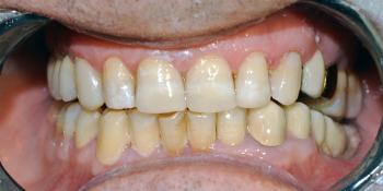 Восстановление фронтальной группы зубов пломбой фото после лечения