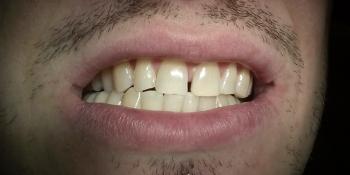 Отбеливание зубов Opalescence Boost фото после лечения