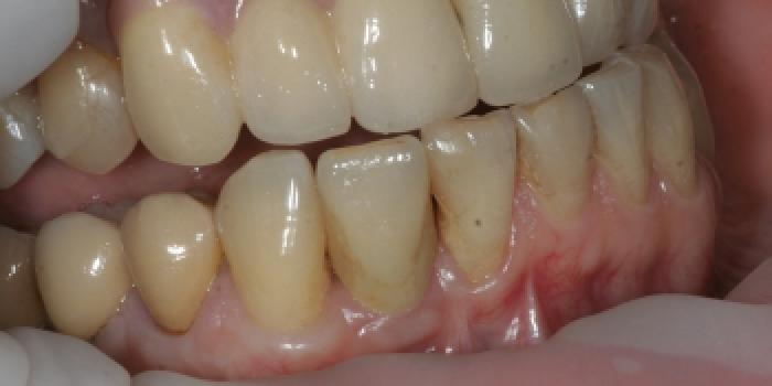 Отсутствие зуба на нижней челюсти фото после лечения