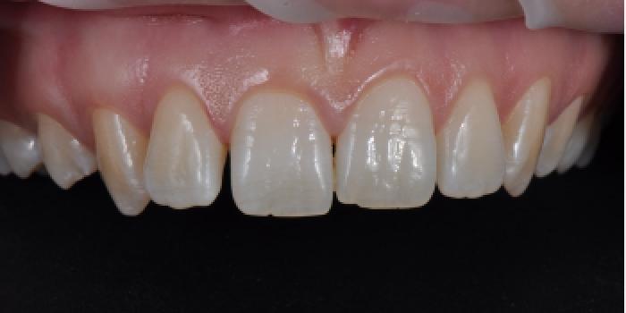 Керамические ультратонкие виниры 0.4 мм фото до лечения