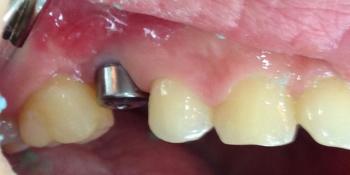 Протезирование металлокерамической коронкой на имплантат фото до лечения