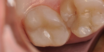 Жалобы на болевые ощущения в 27 зубе от холодных температур фото после лечения