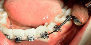 Восстановление не прорезавшегося зуба фото до лечения