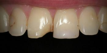 Эстетическая реставрация переднего зуба композитными материалами фото до лечения