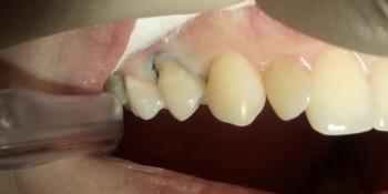 Лечение клиновидного дефекта зуба 1.4 фото до лечения