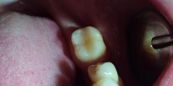 Результат лечения кариеса жевательного зуба 3.7 фото после лечения