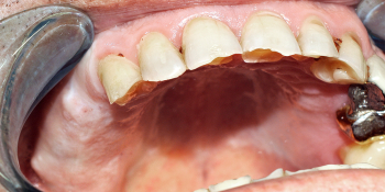 Имплантация с использованием системы MIS, коронки Noritake фото до лечения