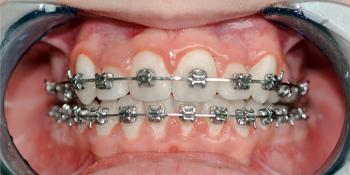 Исправление прикуса самолигирующимися металлическими брекетами с удалением премоляров фото после лечения