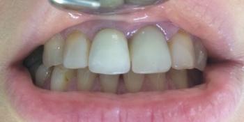 Жалобы на неудовлетворительную эстетику передних зубов: цвет и форма фото до лечения