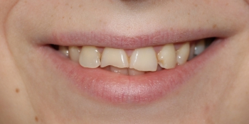 Восстановление зубов керамическими винирами фото до лечения