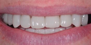 Восстановление отсутствующих зубов имплантатами и безметалловыми коронками фото после лечения