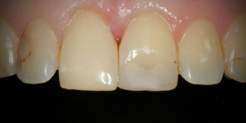 Эстетическая реставрация переднего зуба композитными материалами фото после лечения