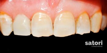 Срочно восстановить сломанный зуб фото после лечения