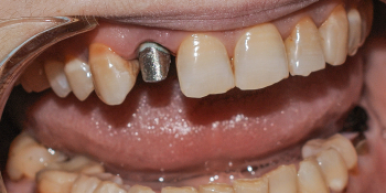 Восстановление зуба металлокерамической коронкой Noritake, Япония фото до лечения