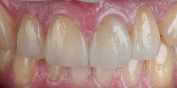 Восстановление зубов безметалловыми тонкостенными коронками фото после лечения