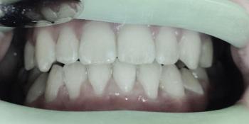 Лечение самолигирующими металлическими брекетами фото после лечения