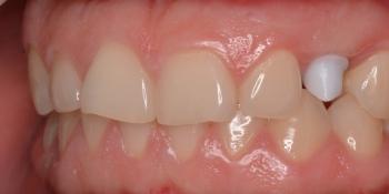 Имплантация клыка, керамическая коронка Emax фото до лечения