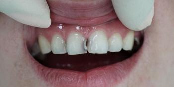 Лечение среднего кариеса 11 зуба с последующей реставрацией фото до лечения
