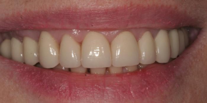 Восстановление зубов керамическими коронками из оксида циркония фото после лечения