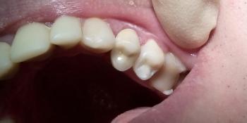 Реставрация зубов 2.3, 2.5 под инфраорбитальной анестезией фото после лечения