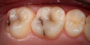 Лечение глубокого кариеса светоотверждаемыми композитными материалами фото до лечения