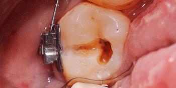 Профессиональная гигиена полости рта, лечение кариеса, фото до и после фото до лечения