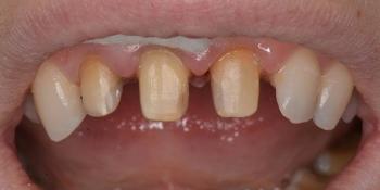 Восстановление зубов керамическими коронками Емах фото до лечения