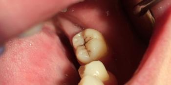 Результат лечения кариеса жевательного зуба 3.7 фото до лечения