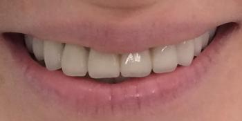 Жалобы на неудовлетворительную эстетику передних зубов: цвет и форма фото после лечения