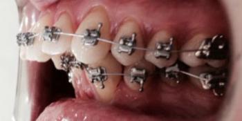 Исправление прикуса металлическими брекетами In-Ovation фото до лечения