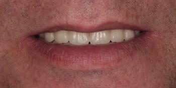 Изготовление съемных протезов на верхнюю и нижнюю челюсть фото после лечения