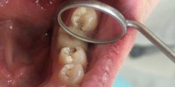 Результат лечения кариеса 35го зуба фото до лечения