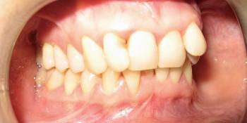 Исправление прикуса самолигирующей брекет системой и ретейнерами фото до лечения