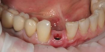 Отсутствие зуба на нижней челюсти фото до лечения