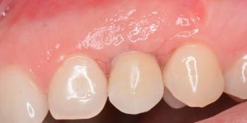 Имплантация клыка, керамическая коронка Emax фото после лечения