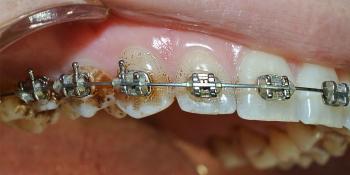 Снятие минерализованных и неминерализованных наддесневых зубных отложений фото до лечения